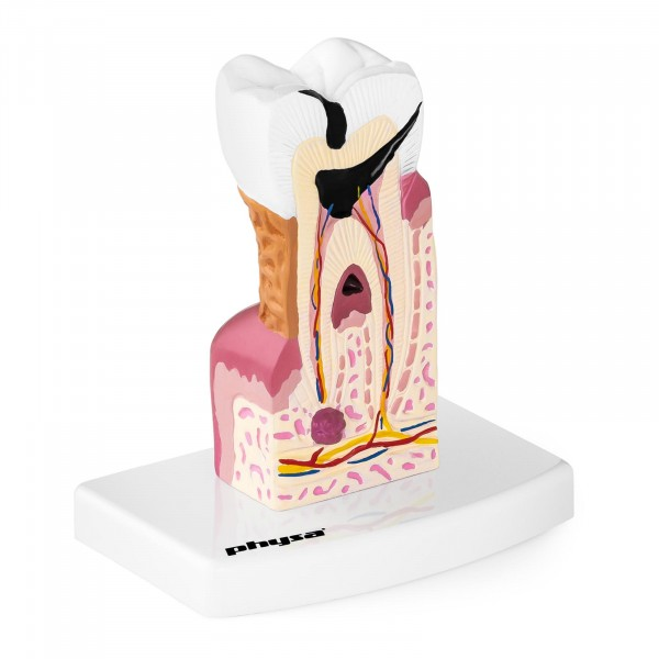 Zahnmodell - kranker Backenzahn